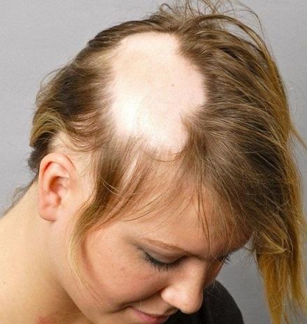 آلوپسی - آلوپسی چیست - درمان آلوپسی - ریزش موی آلوپسی - آلوپسی آره آتا - آلوپسی توتال