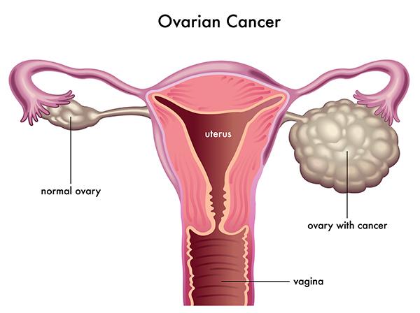 سرطان تخمدان - نشانه های و روش تشخیص سرطان تخمدان - درمان سرطان تخمدان