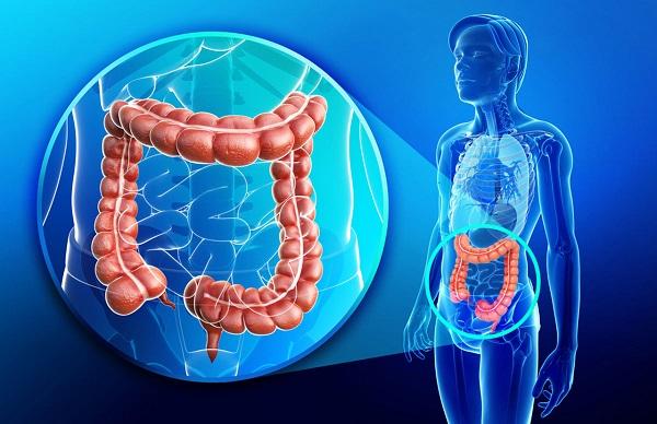 سرطان روده بزرگ یا تومور روده بزرگ که از جمله سرطان های شایع میباشد هنگامی اتفاق میافتد که سلولهای غیرطبیعی در داخل بافت روده شروع به رشد و تکثیر میکنند