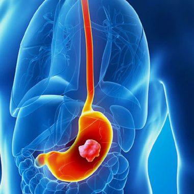 سرطان معده - روش تشخیص سرطان معده - آندوسکوپی - درمان سرطان معده