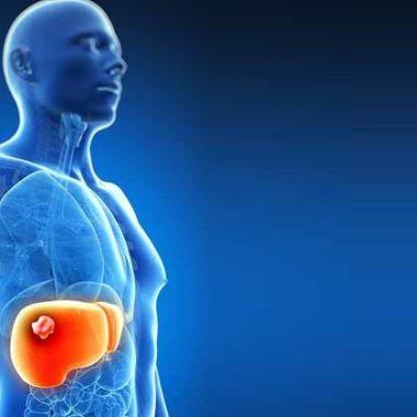 سرطان کبد - درمان سرطان کبد - علائم شایع سرطان کبد - روش تشخیص سرطان کبد