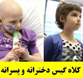 از دست دادن مو در کودکان مبتلا به سرطان
