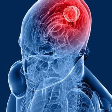 تومورهای خوش خیم و تومورهای بدخیم - راه های انتشار سرطان در بدن