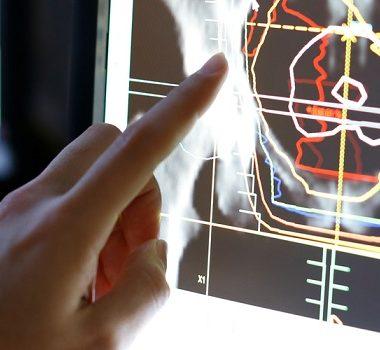 نقش پرتو درمانی در سرطان سینه - شانس ابتلا سرطان سینه بعد از سن یائسگی