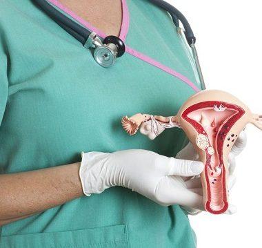 مهمترین علائم سرطان تخمدان چیست - پیشگیری از سرطان تخمدان - متخصص زنان و زایمان