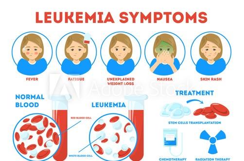 سرطان خون و لوسمی چیست ؟ - علل لوسمی - لوسمی چگونه اتفاق می افتد؟