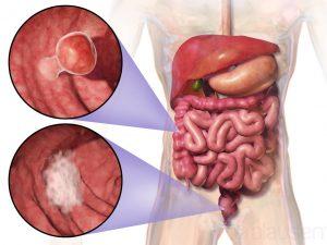 روش های تشخیص انواع سرطان روده بزرگ و درمان آنها