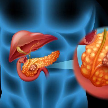 علت سرطان پانکراس یا لوزالمعده چیست و چه علائمی دارد؟