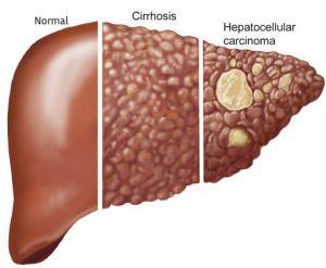 آشنایی با همه انواع سرطان کبد ، علت و راههای درمان آنها