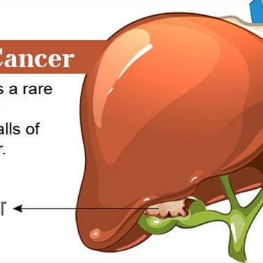 علائم ، علل و ریسک فاکتورهای ابتلا به سرطان کیسه صفرا
