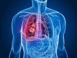 همه چیز در مورد علل ، علائم و راههای پیشگیری از سرطان ریه