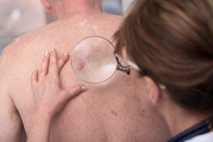 آشنایی با راههای مختلف تشخیص و درمان سرطان پوست