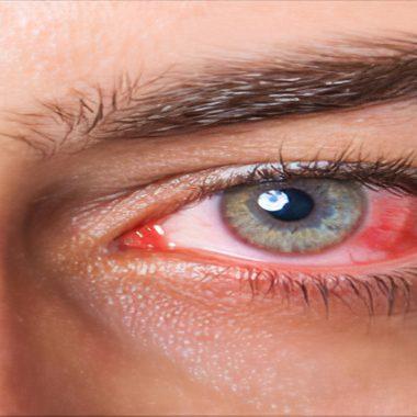 آشنایی با روش های شیمی درمانی سرطان چشم و انواع داروهای آن