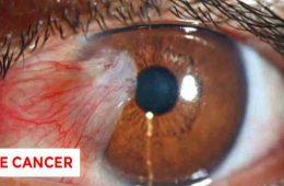 سرطان چشم چیست و چه علائم و ریسک فاکتورهایی دارد؟