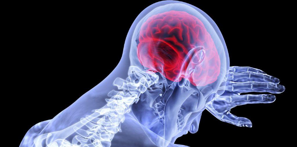 آشنایی با علائم و روش های مختلف درمان سرطان مغز