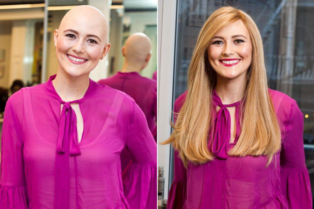 از اهمیت انتخاب و استفاده از کلاه گیس در سرطان سینه بیشتر بدانید!