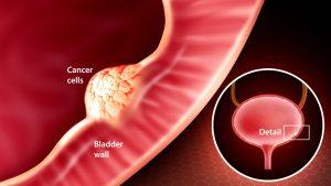 سرطان مثانه چیست و از ریسک فاکتورهای آن چه می دانید؟