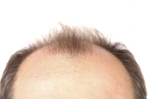آشنایی با درمان های خانگی ریزش مو برای جلوگیری از ریزش مو