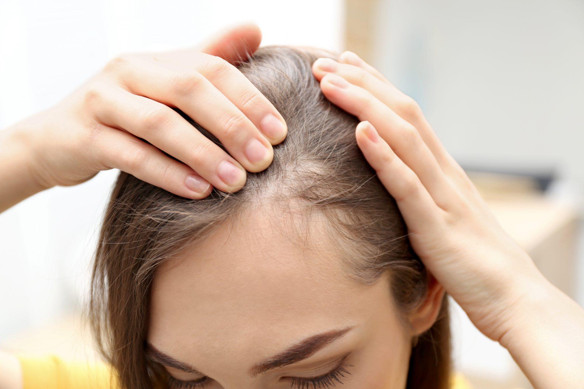 بهترین راههای درمان ریزش مو و تشخیص علت ریزش مو کدامند؟