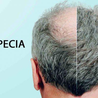 اهمیت و مزایای استفاده از داروی ماینوکسیدیل برای ریزش موی مردانه