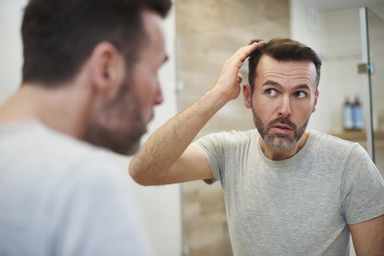 هر آنچه باید در رابطه با علت و درمان طاسی با الگوی مردانه بدانید!