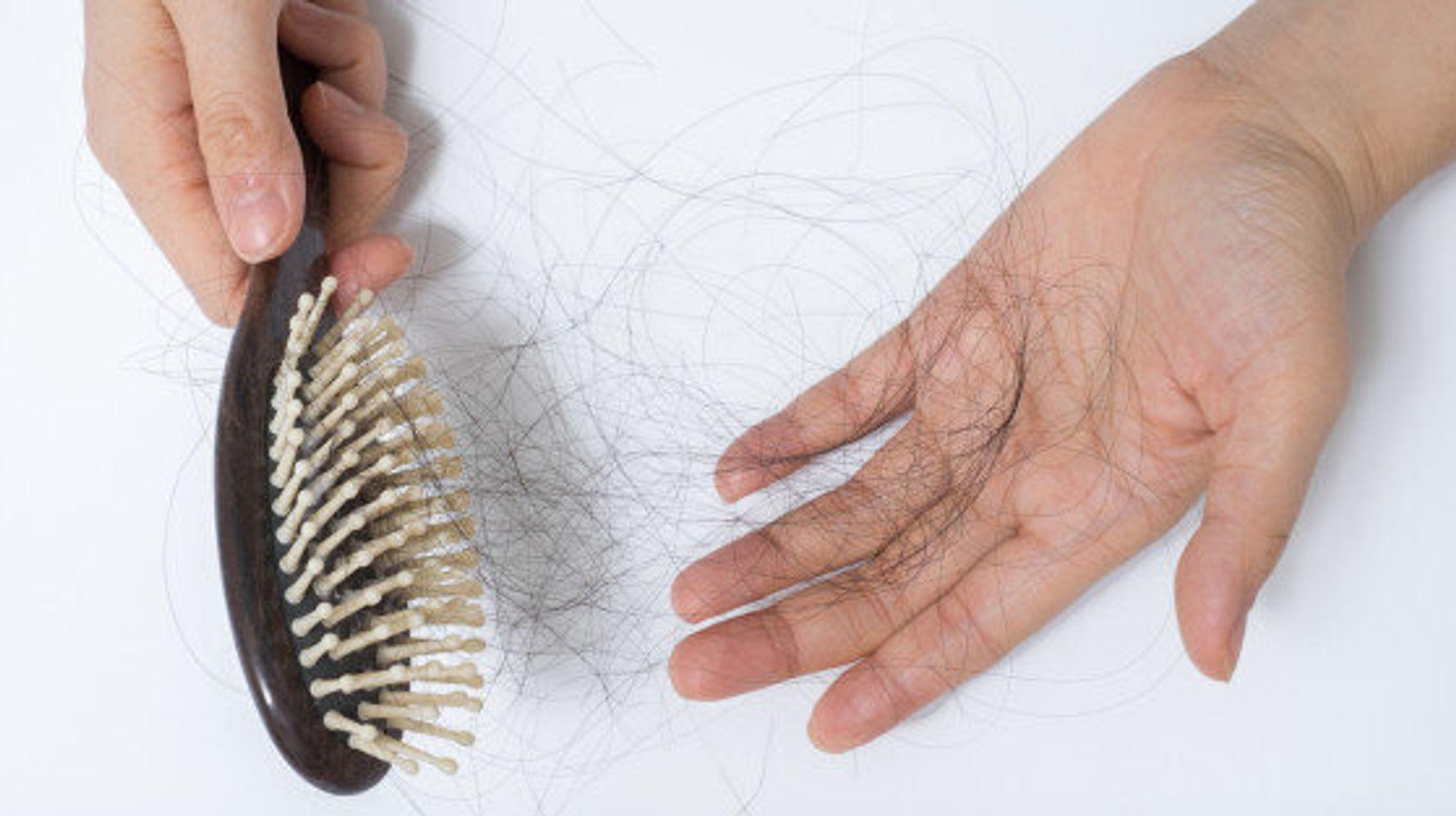 همه روش های جلوگیری از ریزش مو که خانم ها و آقایان باید بدانند!