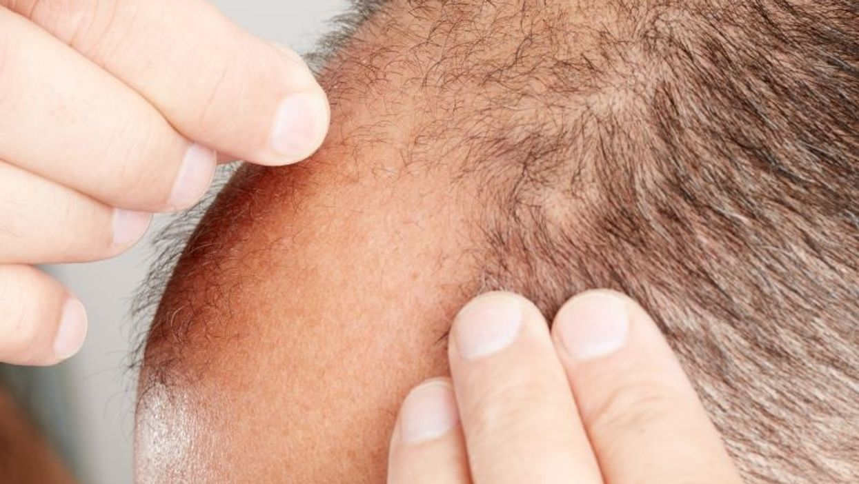تاثیرات مثبت و مکانیسم اثر فیناستراید بر جلوگیری از ریزش مو