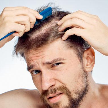 آشنایی با روش های جلوگیری و درمان ریزش موی مردانه