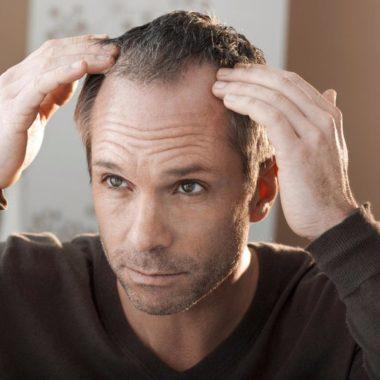 آشنایی با روش های بسیار موثر در پیشگیری از ریزش مو
